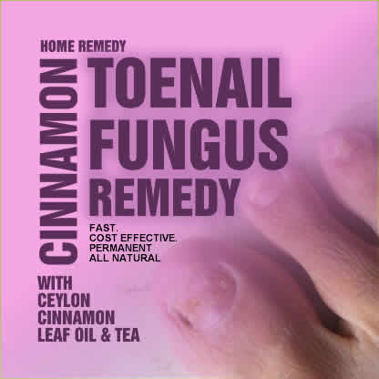 Natural remedy for toe fungal infection yeast